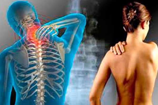 Osteocondroza coloanei vertebrale cervicale